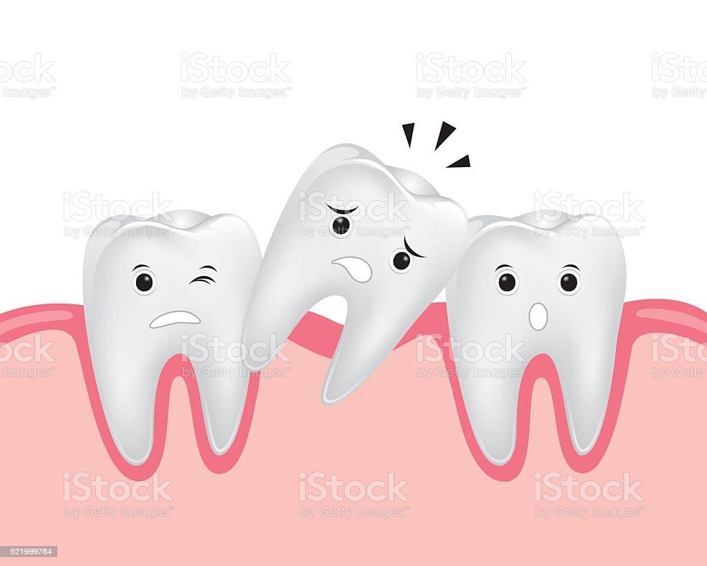 Приснилось что упали все зубы