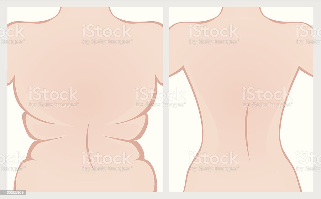 Fat back before and after treatment. royalty-free stock vector art
