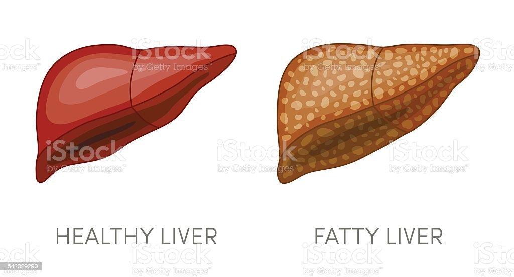 Fatty liver disease vector art illustration