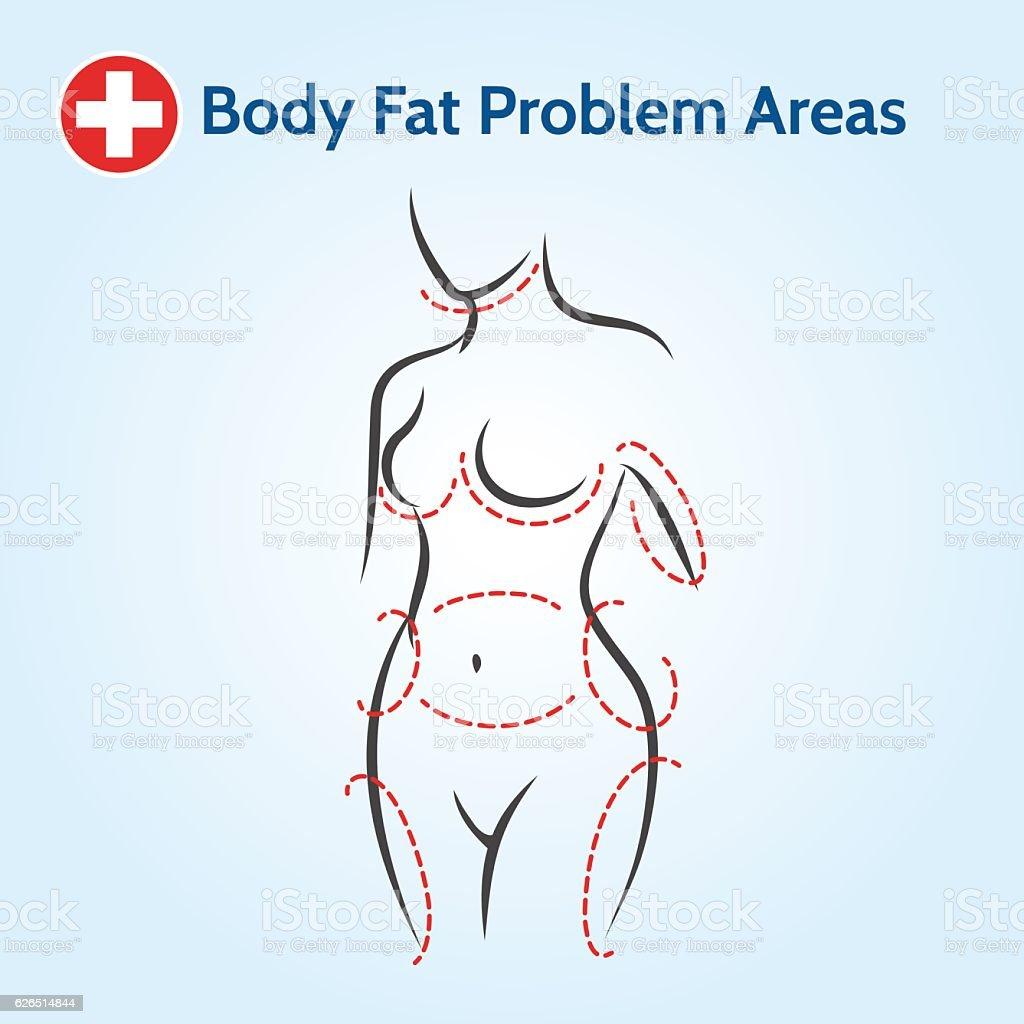 Female body fat problem areas vector art illustration