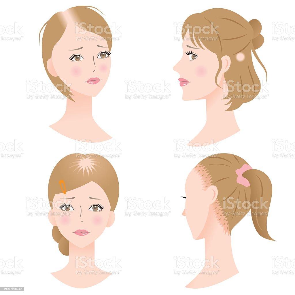 female hair loss vector art illustration