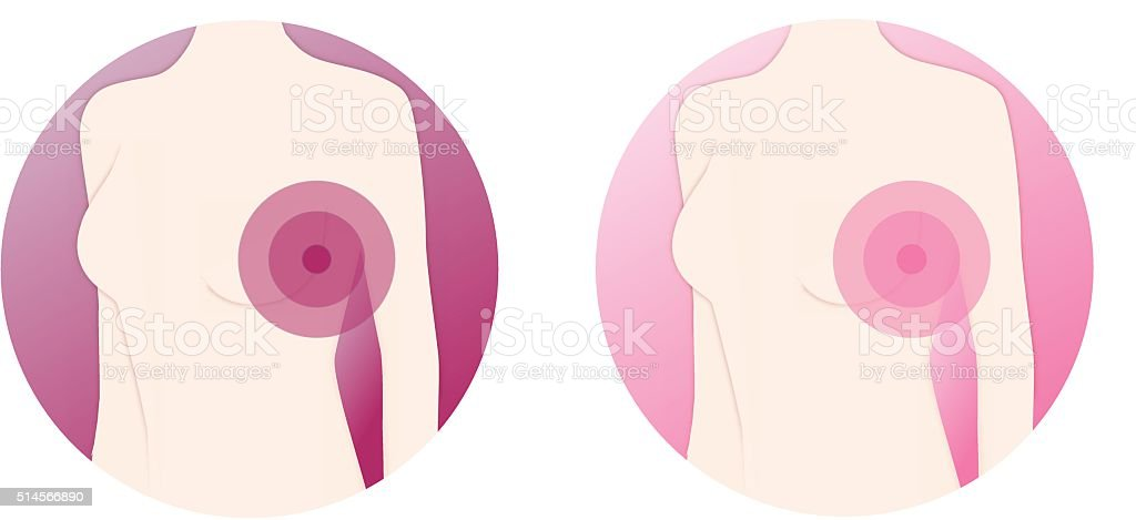 Female Torso with Breast Cancer Symbol - Vector Illustration vector art illustration