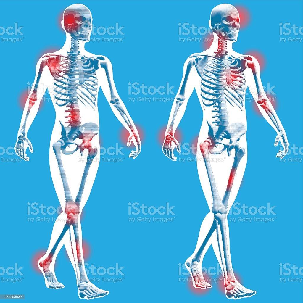 Figure walking - Semi front view royalty-free stock vector art