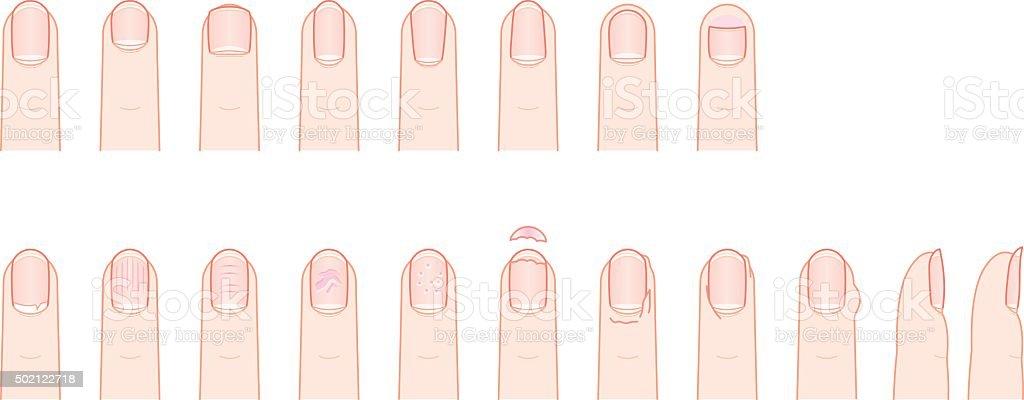 Fingernail, shape and condition. vector art illustration
