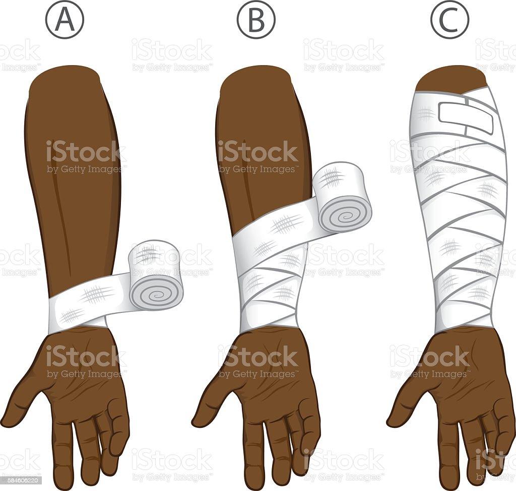 first aid afrodescendant forearm, educational simple dressing vector art illustration
