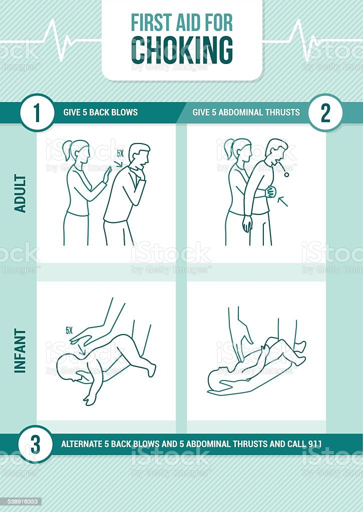 First aid for choking vector art illustration
