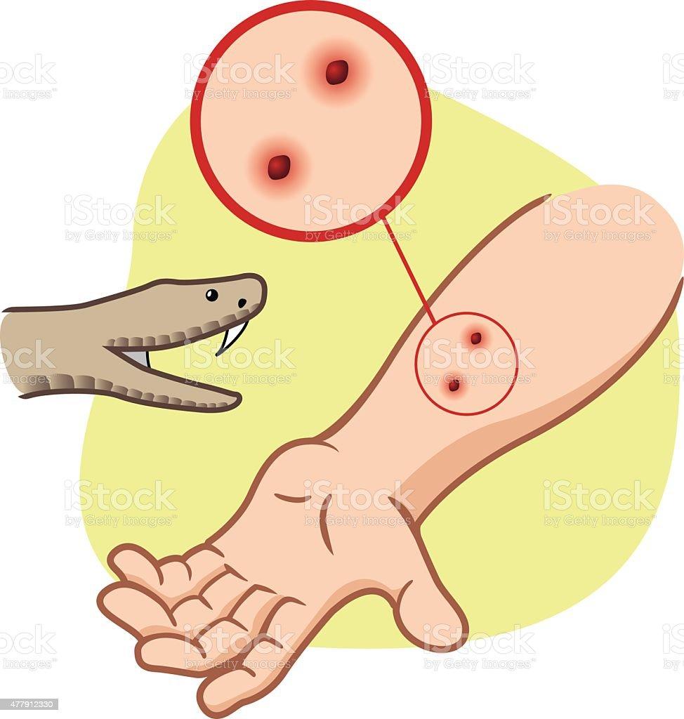 First Aid snake bite on her arm vector art illustration