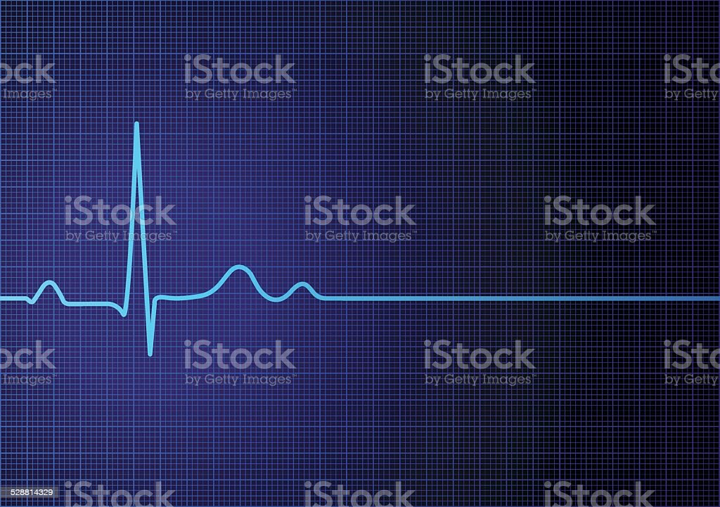 Flat line EKG vector art illustration