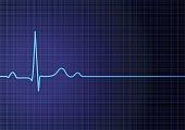 Flat line EKG
