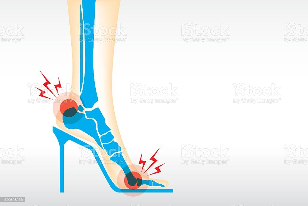 Foot pain by wearing high heels. vector art illustration