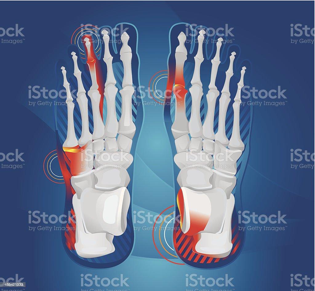 Foot pain vector art illustration