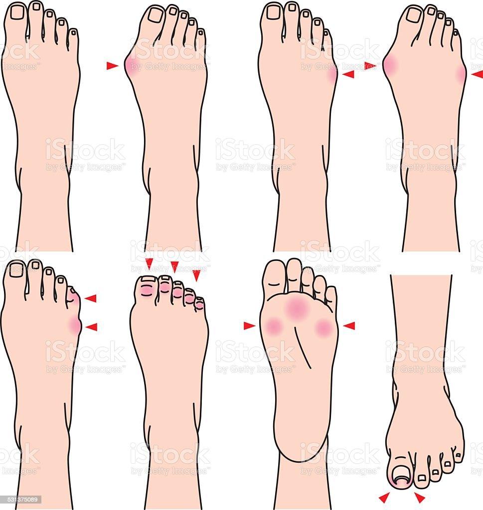 foot. Pain. vector art illustration