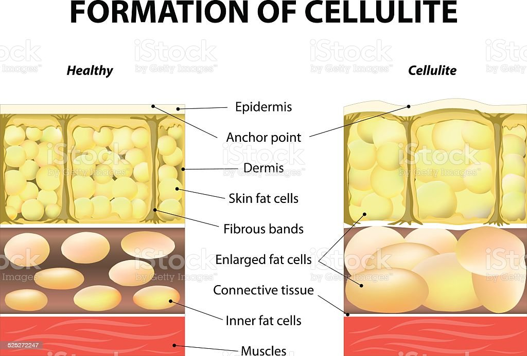 Formation of cellulite vector art illustration