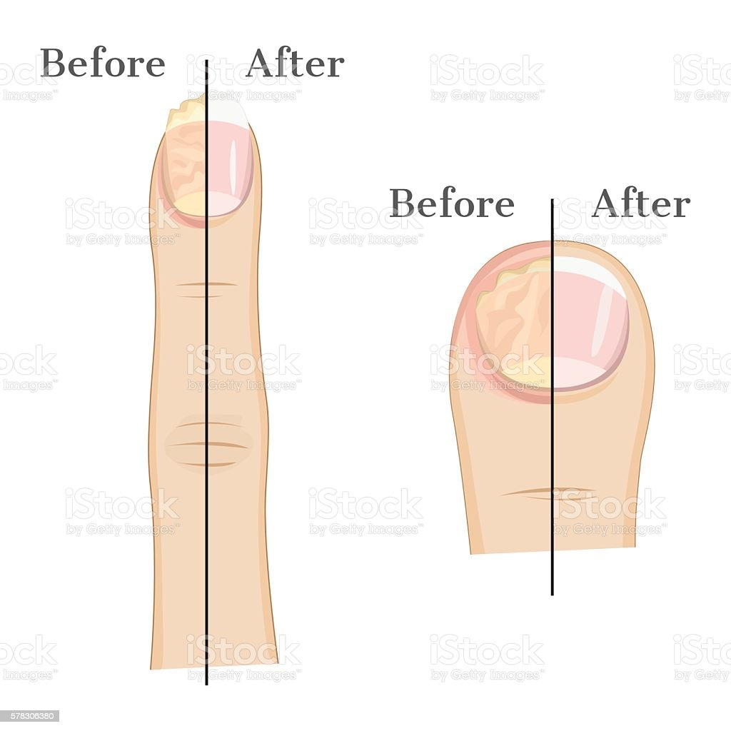 Fungal infection of the nail vector art illustration
