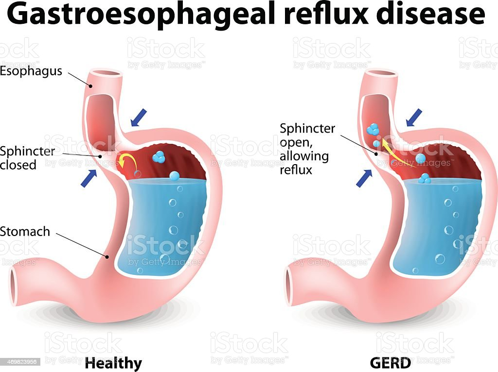 Gastroesophageal Reflux Disease vector art illustration