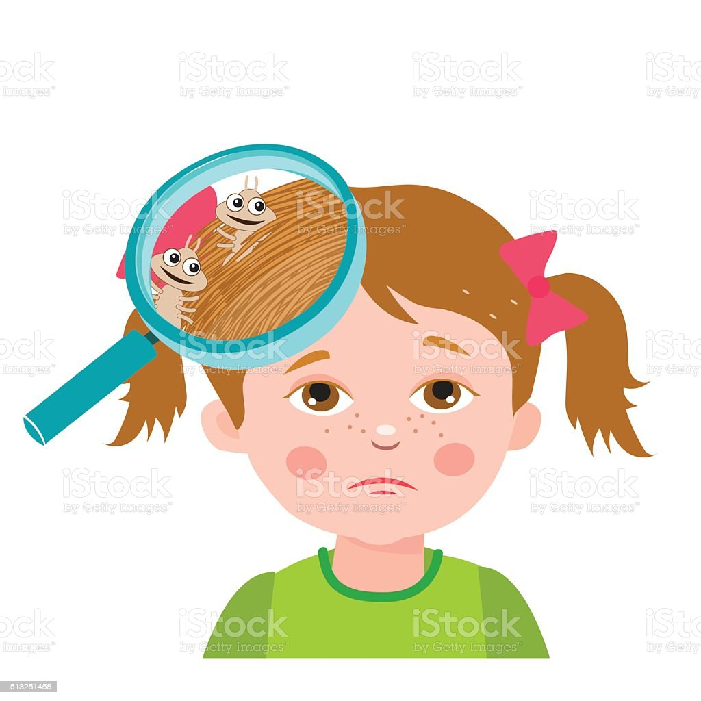 Girl With Lice. Magnifying Glass Close Up Of A Head. vector art illustration