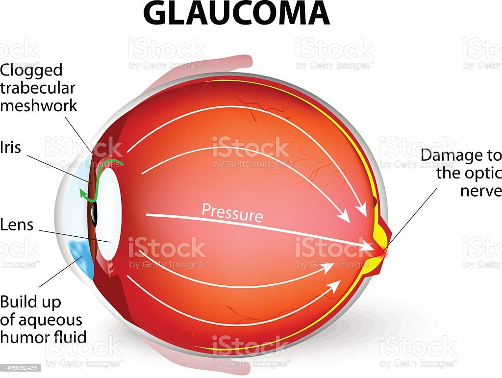 Glaucoma vector art illustration