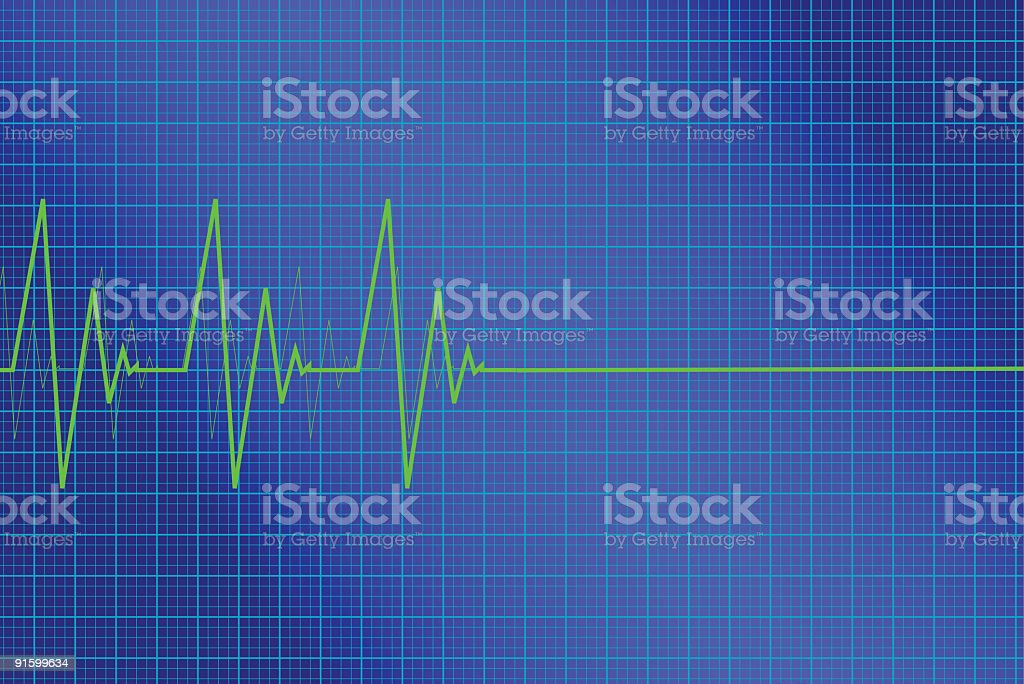Green light pulse lines on a blue monitor vector art illustration
