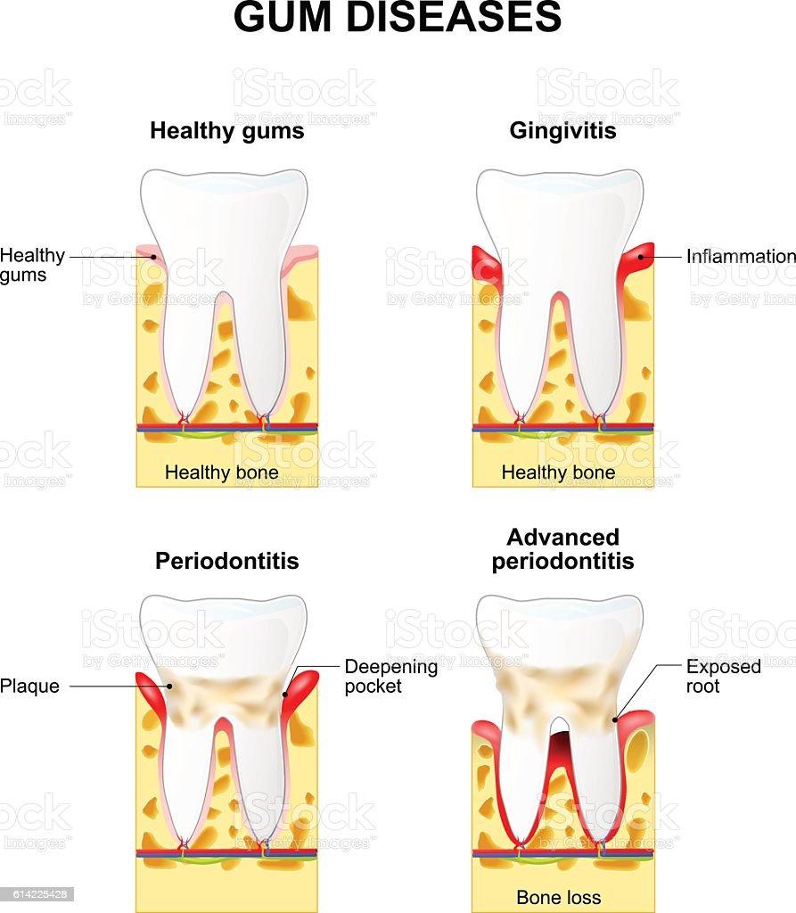Gum disease vector art illustration