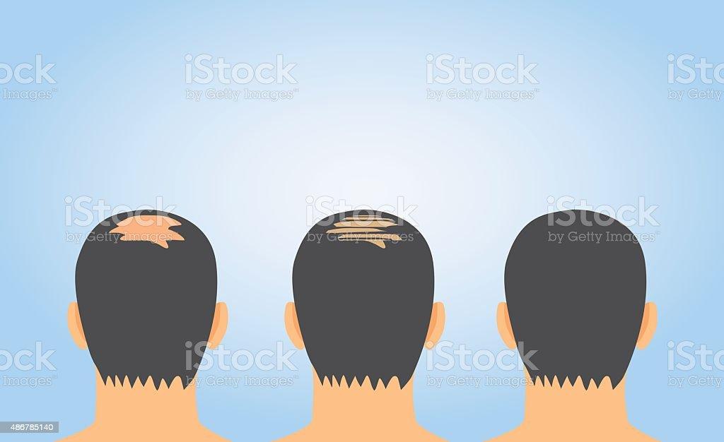 Hair fall treatment on bald vector art illustration
