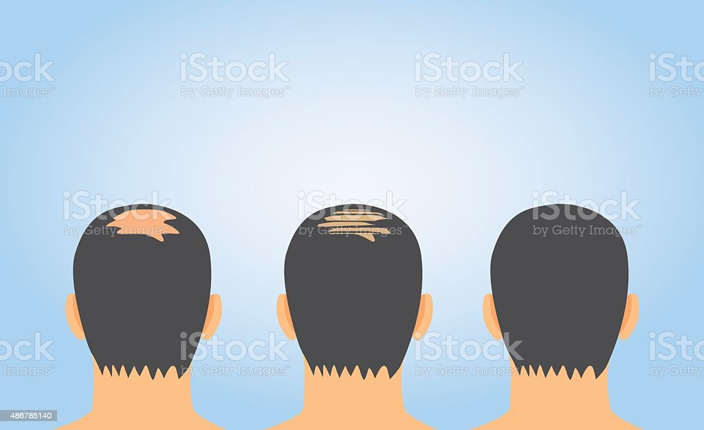 Hair fall treatment on bald vector art illustration
