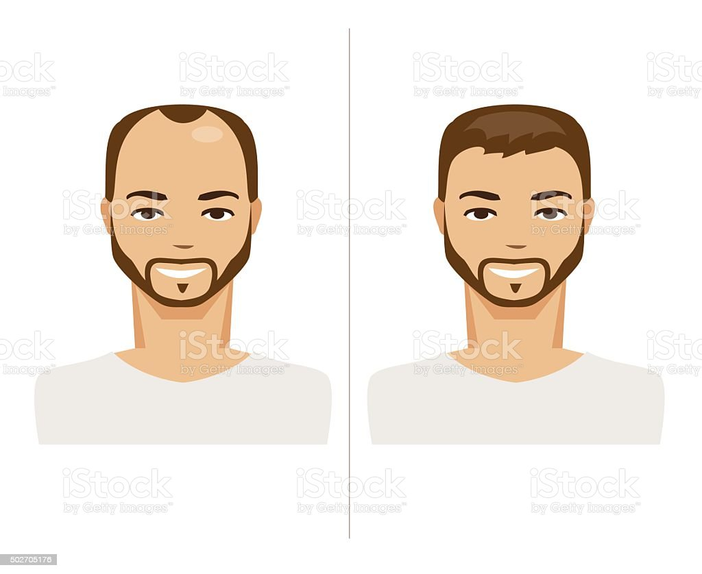 Hair Loss and healthy hair. Vector Illustration vector art illustration