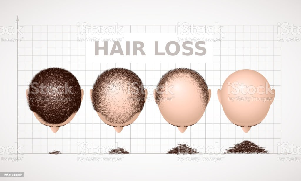 Hair loss. Graph of four stages of alopecia vector art illustration