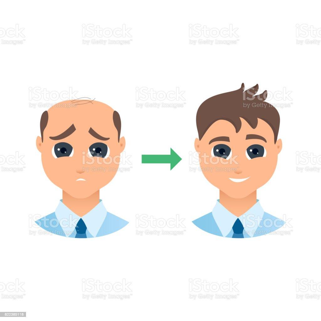 Hair loss in men vector art illustration