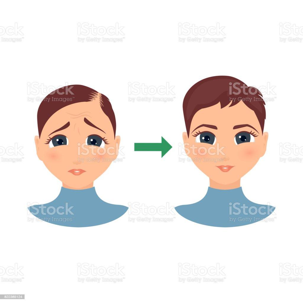 Hair loss in women vector art illustration