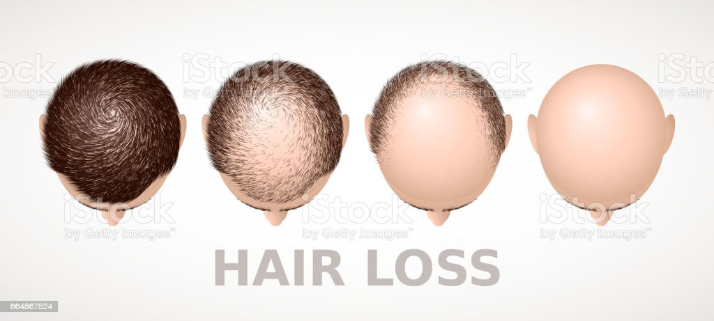 Hair loss. Set of four stages of alopecia vector art illustration