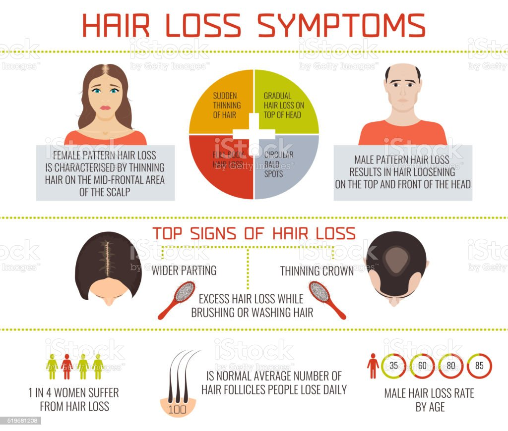 Hair loss symptoms infographics vector art illustration