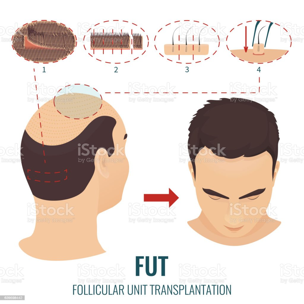 FUT hair loss treatment vector art illustration