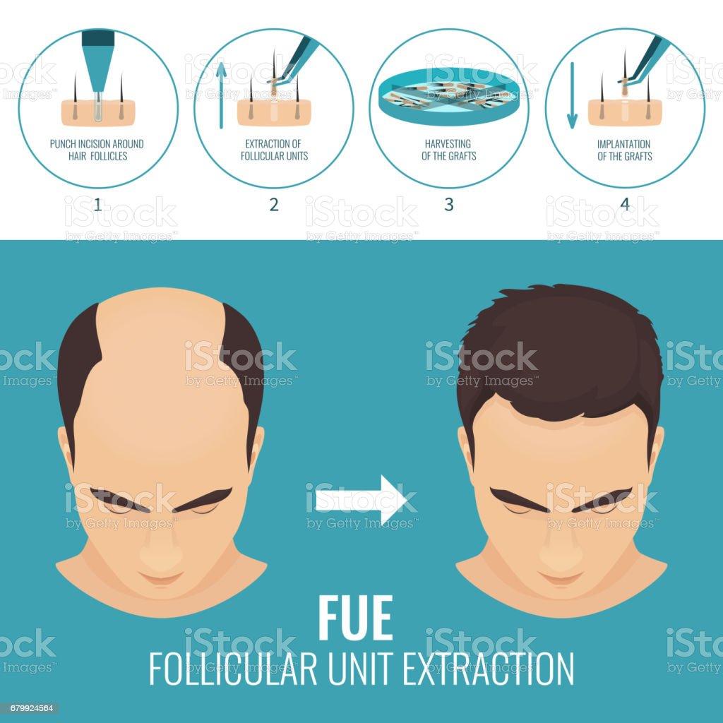 FUE hair loss treatment vector art illustration