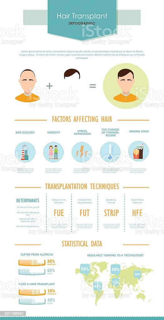 Hair transplantation. Colorful infographic in flat style. vector art illustration