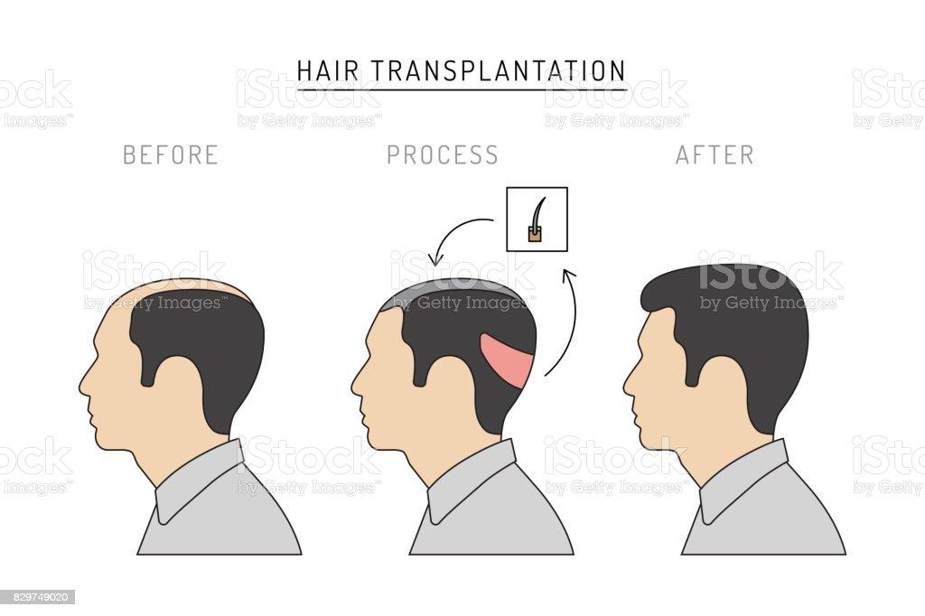 hair transplantation vector vector art illustration