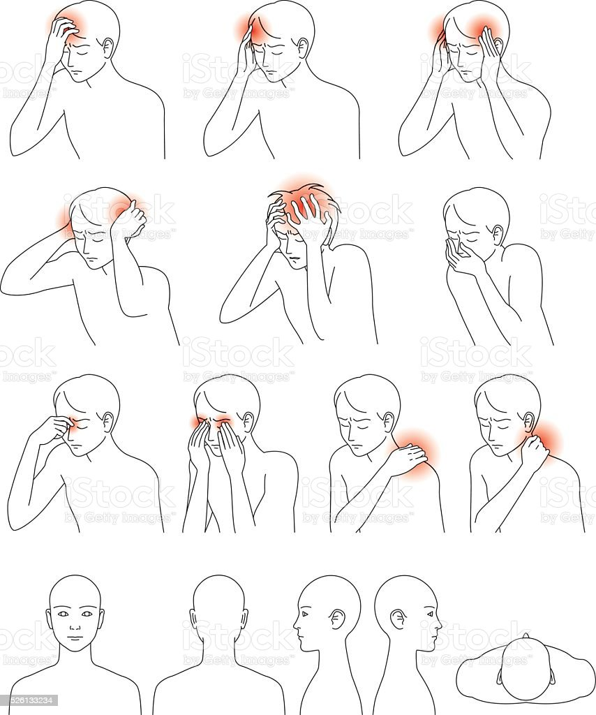 Headache and stiff neck vector art illustration