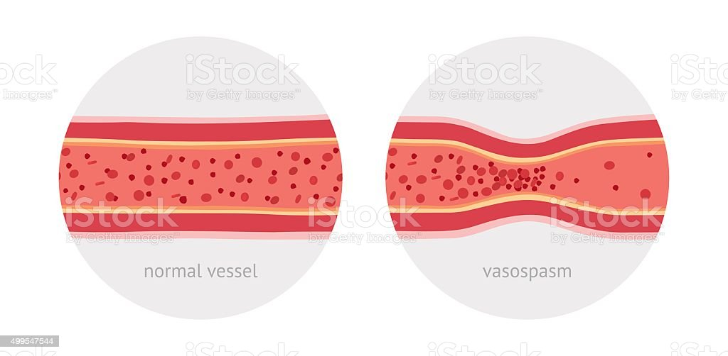 Healthy and sick human vessels vector art illustration