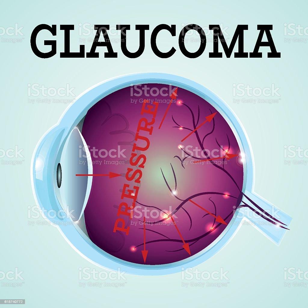 Healthy Eye Glaucoma vector art illustration
