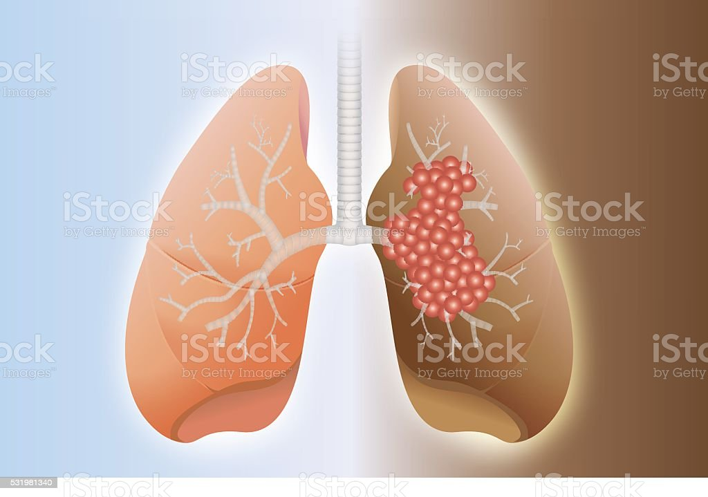 Healthy lung and cancer lung vector art illustration