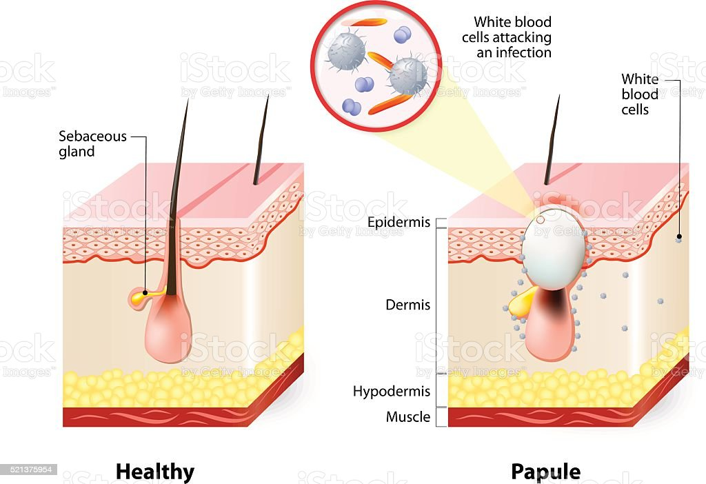 Healthy skin and Papules vector art illustration
