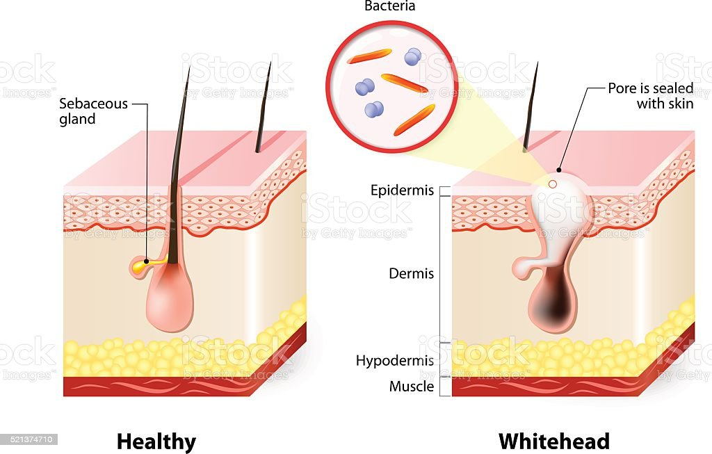 Healthy skin and Whiteheads vector art illustration