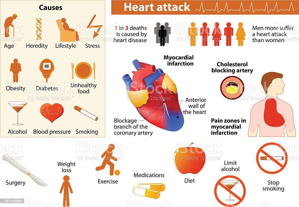 Heart attack infographic vector art illustration