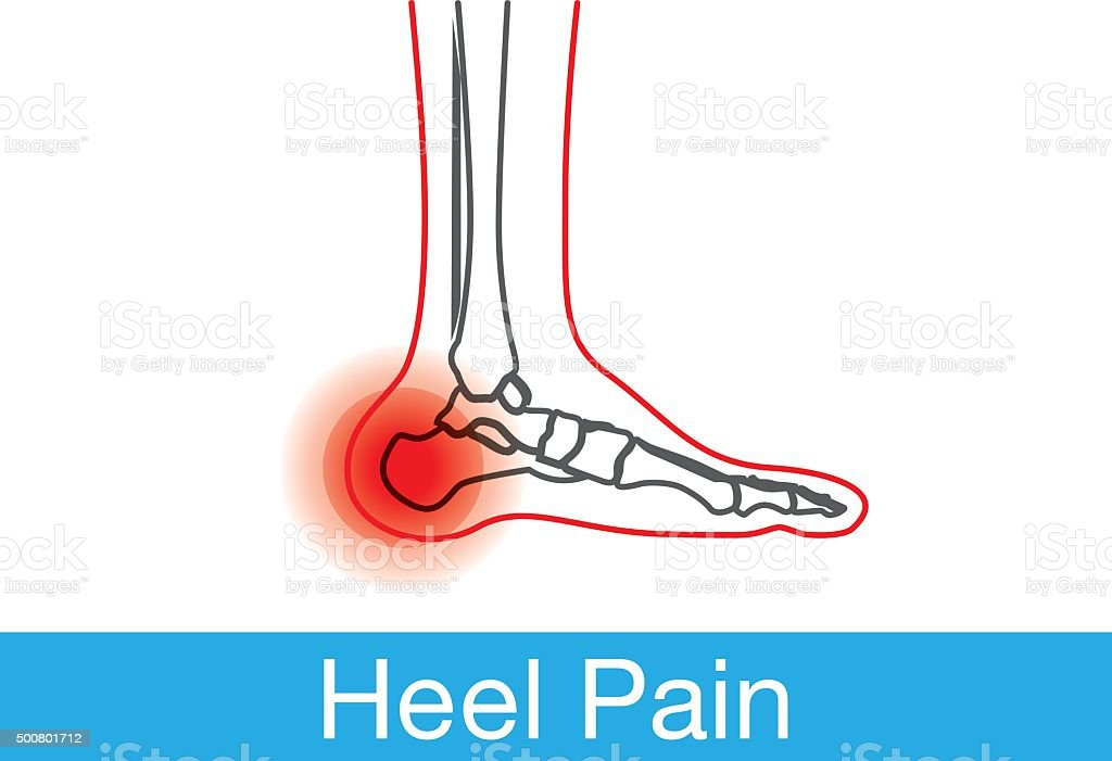 Heel pain outline vector art illustration