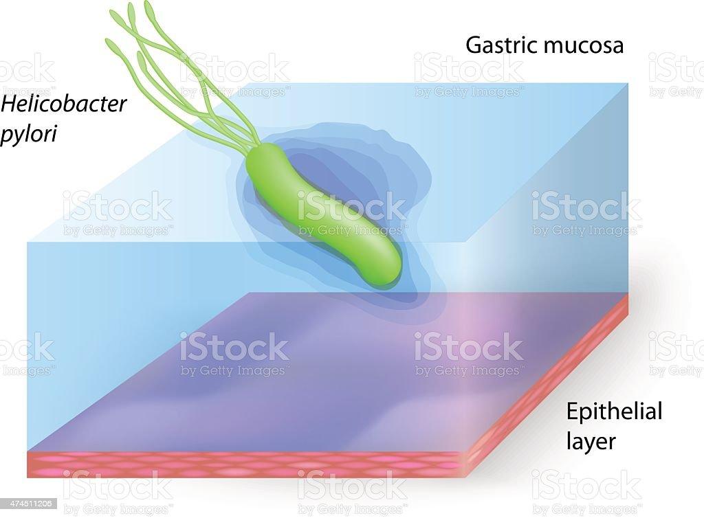 helicobacter pylori im darm