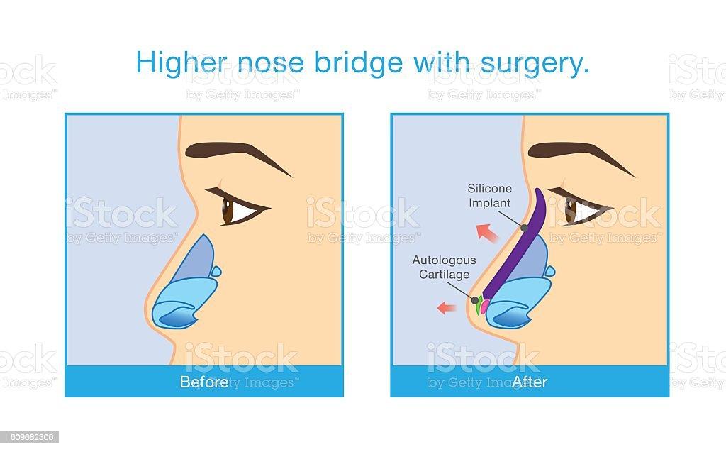 Higher nose bridge with surgery. vector art illustration