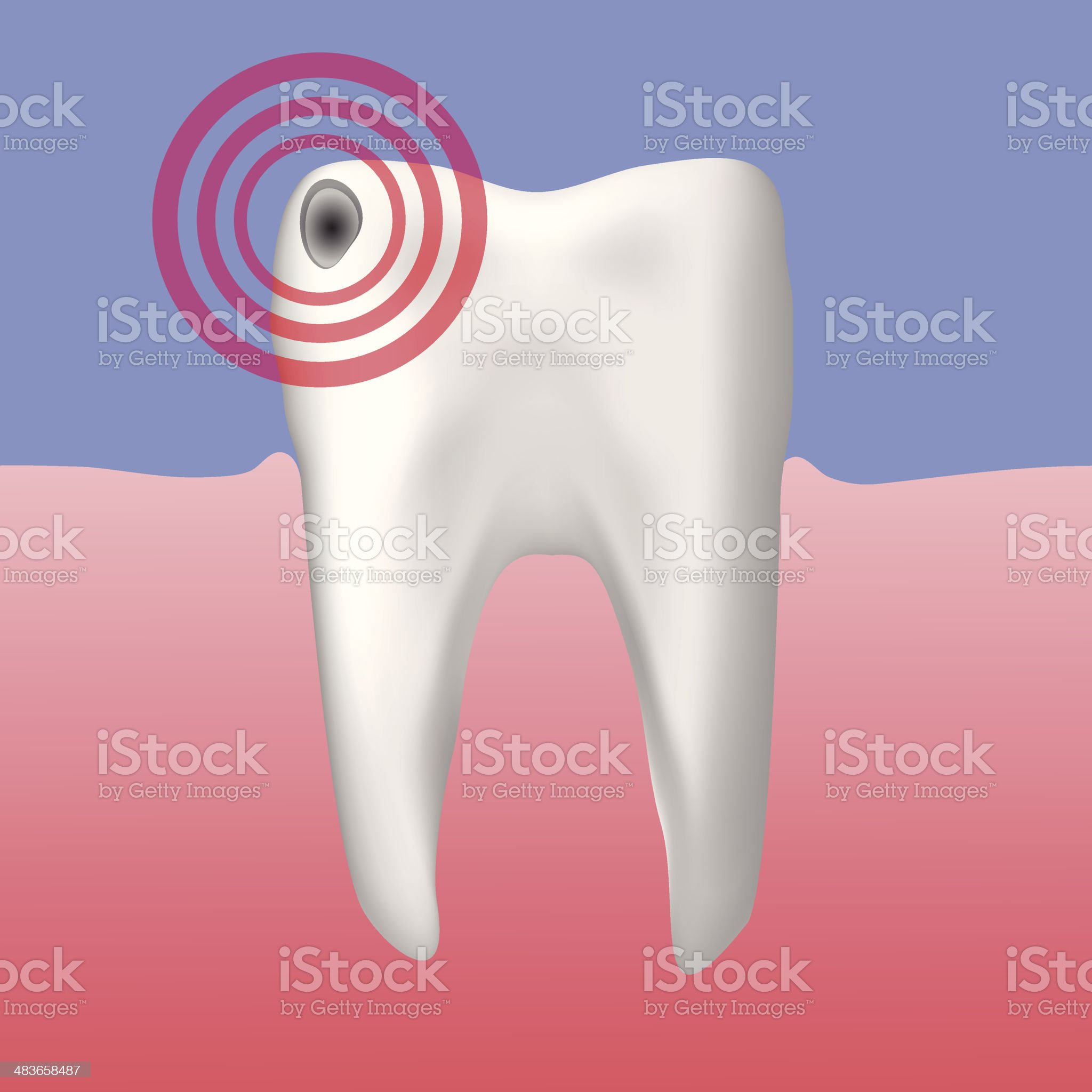 hole in the tooth royalty-free stock vector art