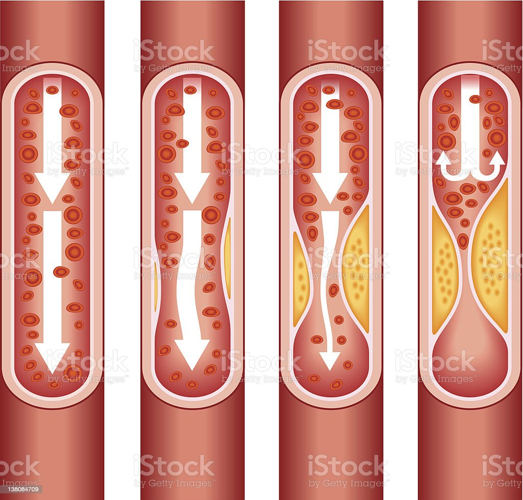 human atherosclerosis vector art illustration