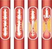 human atherosclerosis