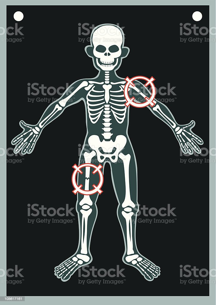 Human Body X Ray vector art illustration