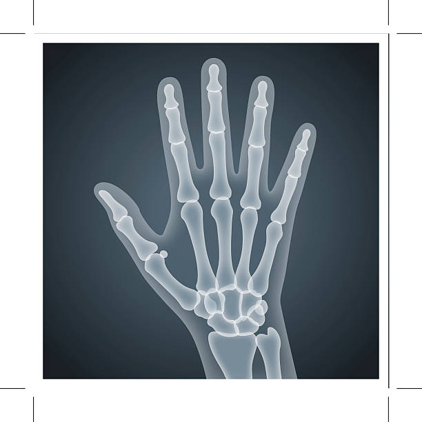 X Ray Image Clip Art, Vector Images & Illustrations - iStock